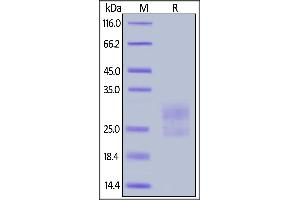 Image no. 1 for Inducible T-Cell Co-Stimulator (ICOS) (AA 21-144) (Active) protein (His tag) (ABIN6809884)