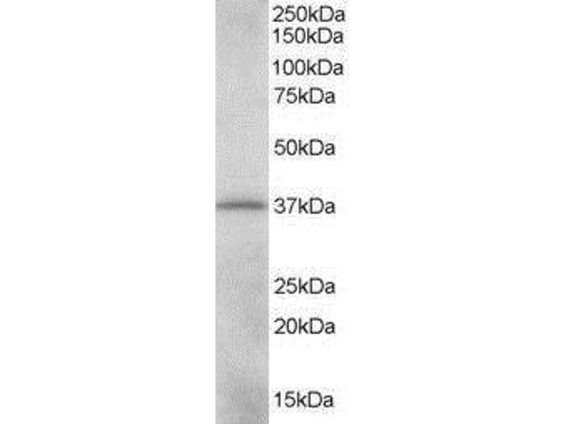 Western Blotting (WB) image for anti-V-Crk Sarcoma Virus CT10 Oncogene Homolog (Avian)-Like (CRKL) (C-Term) antibody (ABIN268650)