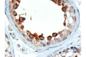 Immunohistochemistry (IHC) image for anti-ALMS1 antibody (Alstrom Syndrome 1) (C-Term) (ABIN184952)