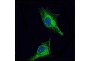 Image no. 2 for anti-Oligodendrocyte Lineage Transcription Factor 2 (OLIG2) antibody (ABIN1108515)