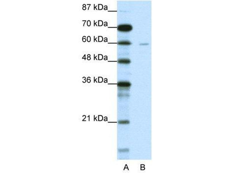 Western Blotting (WB) image for anti-DCP1 Decapping Enzyme Homolog A (S. Cerevisiae) (DCP1A) (N-Term) antibody (ABIN183789)