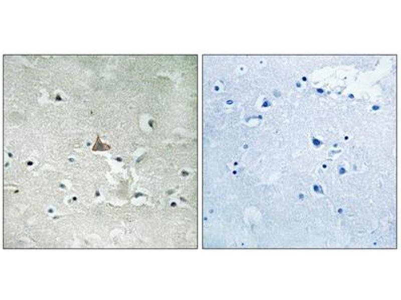 Immunohistochemistry (IHC) image for anti-Neurotrophic Tyrosine Kinase, Receptor, Type 2 (NTRK2) (pTyr706), (pTyr707) antibody (ABIN1847660)