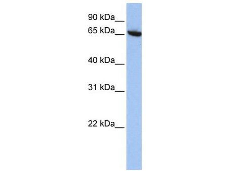 Western Blotting (WB) image for anti-Core-binding Factor, Runt Domain, alpha Subunit 2, Translocated To, 2 (CBFA2T2) (N-Term) antibody (ABIN2780644)