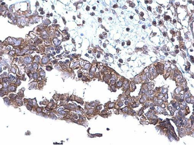 Immunohistochemistry (IHC) image for anti-SQSTM1 antibody (Sequestosome 1) (Internal Region) (ABIN2854836)