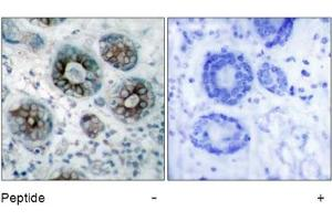 Image no. 1 for anti-Growth Associated Protein 43 (GAP43) (Ser41) antibody (ABIN197546)