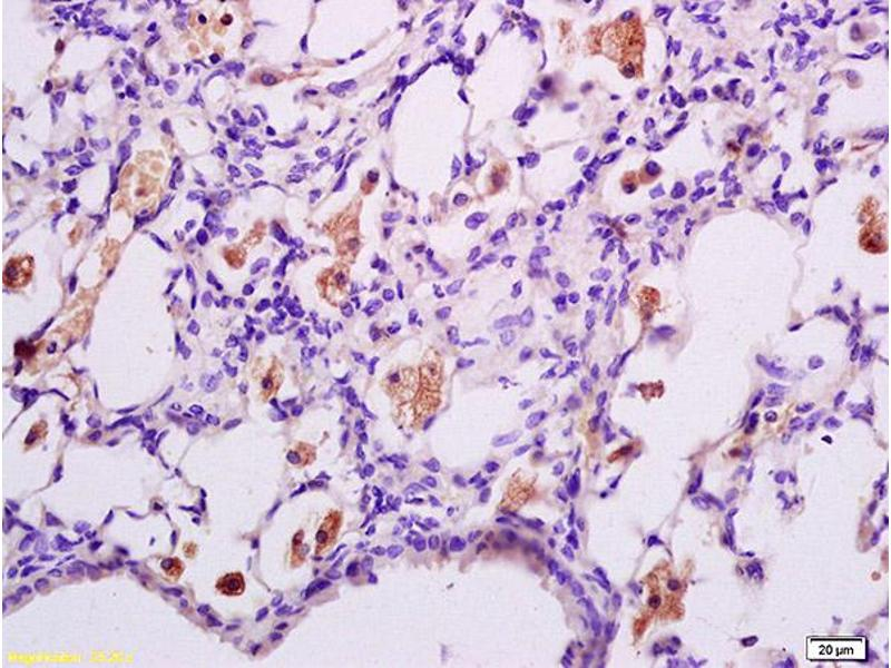 Immunohistochemistry (IHC) image for anti-Interferon (Alpha, beta and Omega) Receptor 1 (IFNAR1) (AA 510-550), (pSer535), (pSer538) antibody (ABIN802353)
