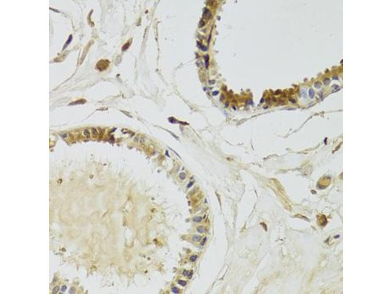 Immunohistochemistry (Paraffin-embedded Sections) (IHC (p)) image for anti-Kallikrein 10 (KLK10) antibody (ABIN2969141)