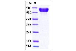 Image no. 1 for Fibronectin 1 (FN1) (AA 607-1265) (Active) protein (His tag) (ABIN2002555)