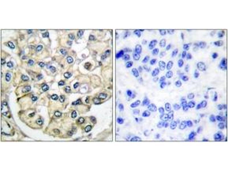 Immunohistochemistry (IHC) image for anti-Fibroblast Growth Factor Receptor 2 (FGFR2) (AA 471-520) antibody (ABIN1533272)
