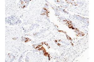 Image no. 1 for anti-Regenerating Islet-Derived 1 beta (REG1B) (AA 1-166) antibody (ABIN1999007)