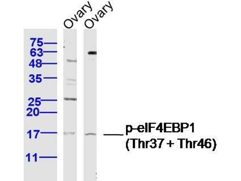 Western Blotting (WB) image for anti-Eukaryotic Translation Initiation Factor 4E Binding Protein 1 (EIF4EBP1) (AA 10-55), (pThr37), (pThr46) antibody (ABIN682978)