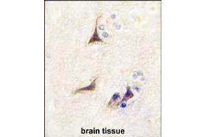 Image no. 2 for anti-Nerve Growth Factor beta (NGFB) (AA 84-115) antibody (ABIN5536943)