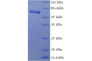 Image no. 1 for TEA Domain Family Member 4 (TEAD4) (AA 74-434), (partial) protein (His-SUMO Tag) (ABIN5711273)