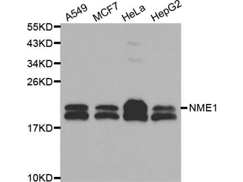 Western Blotting (WB) image for anti-Non-Metastatic Cells 1, Protein (NM23A) Expressed in (NME1) (C-Term) antibody (ABIN2988568)