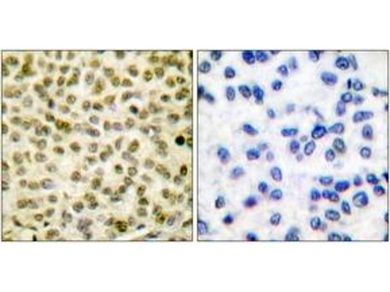 Immunohistochemistry (IHC) image for anti-C-MYC antibody (V-Myc Myelocytomatosis Viral Oncogene Homolog (Avian)) (pSer62) (ABIN1531189)