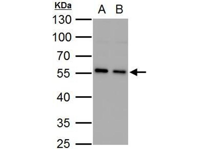 Western Blotting (WB) image for anti-SQSTM1 antibody (Sequestosome 1) (Internal Region) (ABIN2854836)