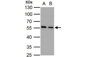 Image no. 2 for anti-Sequestosome 1 (SQSTM1) (Internal Region) antibody (ABIN2854836)