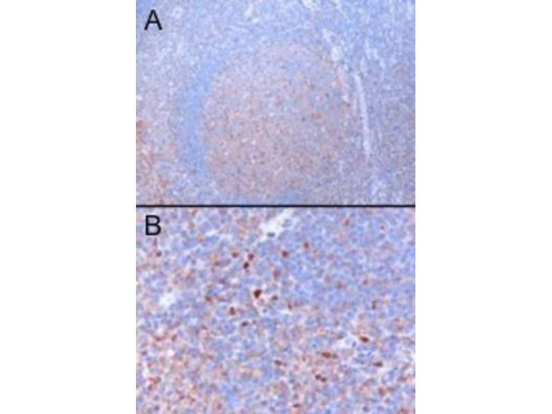 Immunohistochemistry (Paraffin-embedded Sections) (IHC (p)) image for anti-GATA3 antibody (GATA Binding Protein 3) (N-Term) (ABIN4313648)