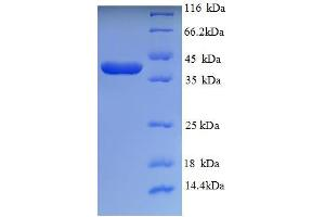 Image no. 1 for Wingless-Type MMTV Integration Site Family Member 2 (WNT2) (AA 26-360) protein (His tag) (ABIN5710622)