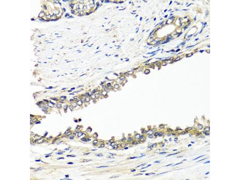 Image no. 2 for anti-Breast Cancer 1 (BRCA1) antibody (ABIN6566504)