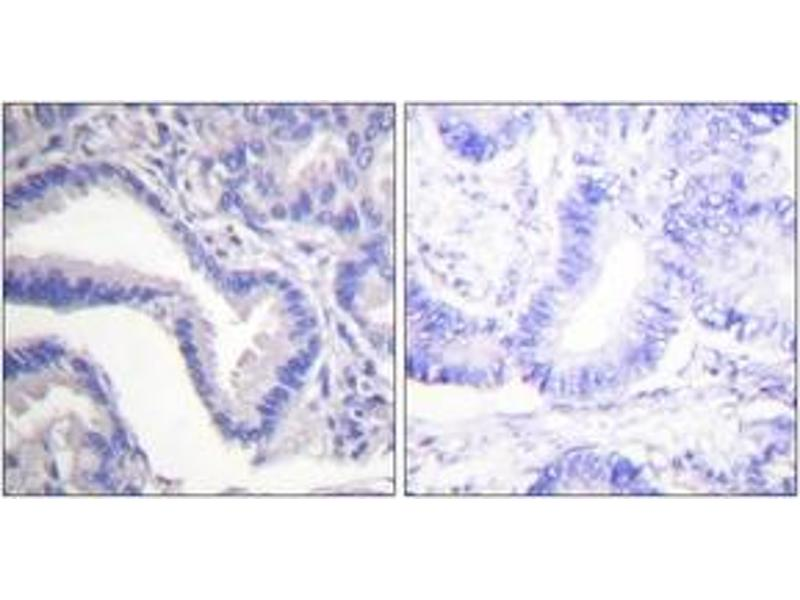 Immunohistochemistry (IHC) image for anti-Caspase 7, Apoptosis-Related Cysteine Peptidase (CASP7) (Cleaved-Asp198), (AA 149-198) antibody (ABIN1536084)