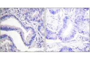 Immunohistochemistry (IHC) image for anti-Caspase 7 antibody (Caspase 7, Apoptosis-Related Cysteine Peptidase) (Cleaved-Asp198) (ABIN1536084)
