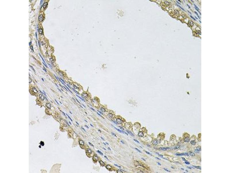 Image no. 2 for anti-MTERF Domain Containing 1 (MTERFD1) antibody (ABIN6572015)