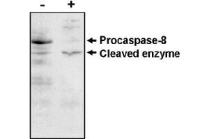 Western Blotting (WB) image for anti-Caspase 8 antibody (Caspase 8, Apoptosis-Related Cysteine Peptidase) (ABIN264407)