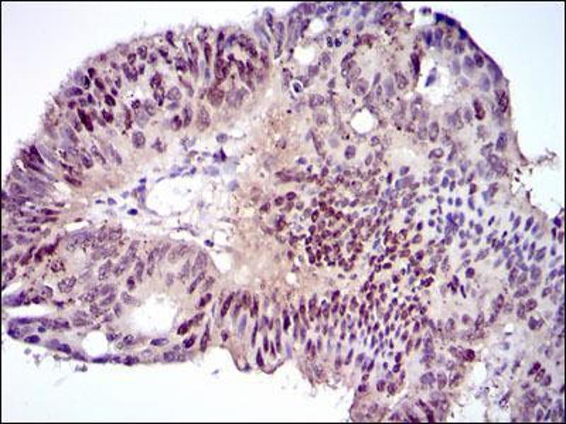 Immunohistochemistry (IHC) image for anti-CCAAT/enhancer Binding Protein (C/EBP), alpha (CEBPA) antibody (ABIN969048)