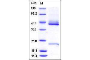 Image no. 1 for Interleukin 23 (IL23) (AA 1-189) (Active) protein (His tag) (ABIN2215793)