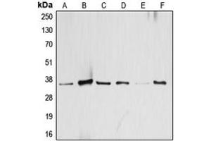 Western Blotting (WB) image for anti-Activating Transcription Factor 1 (AFT1) (C-Term) antibody (ABIN2704505)