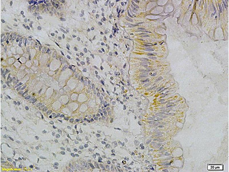Immunohistochemistry (IHC) image for anti-Tumor Necrosis Factor Antikörper (TNF) (ABIN722481)