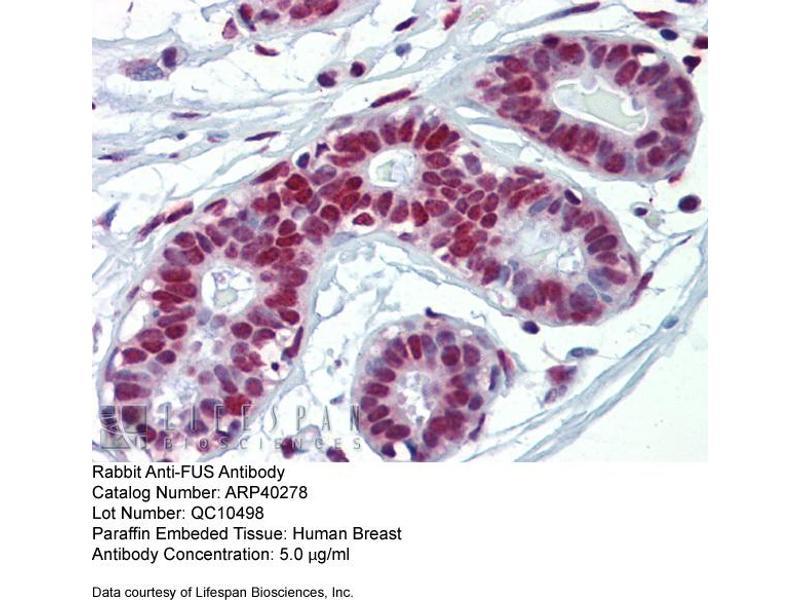 Immunohistochemistry (IHC) image for anti-Fused in Sarcoma (FUS) (N-Term) antibody (ABIN310014)
