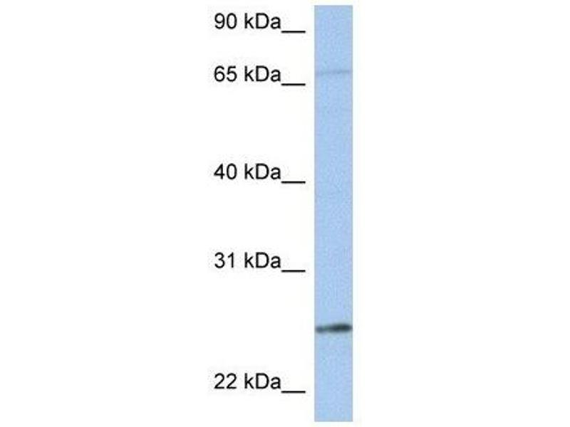 Western Blotting (WB) image for anti-Kallikrein 6 antibody (KLK6) (N-Term) (ABIN4890310)