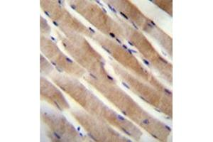 Immunohistochemistry (Paraffin-embedded Sections) (IHC (p)) image for anti-Ras Homolog Enriched in Brain (RHEB) (AA 111-142), (C-Term) antibody (ABIN954537)