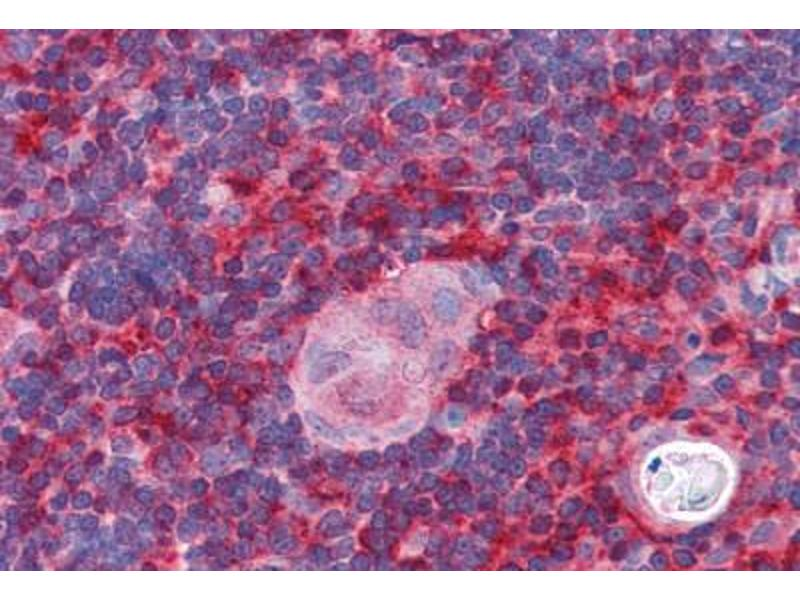 Immunohistochemistry (Paraffin-embedded Sections) (IHC (p)) image for anti-Actin Related Protein 2/3 Complex, Subunit 1B, 41kDa (ARPC1B) (AA 2-14) antibody (ABIN351466)