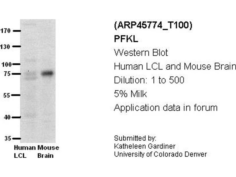 image for anti-phosphofructokinase, Liver (PFKL) (Middle Region) antibody (ABIN2782359)
