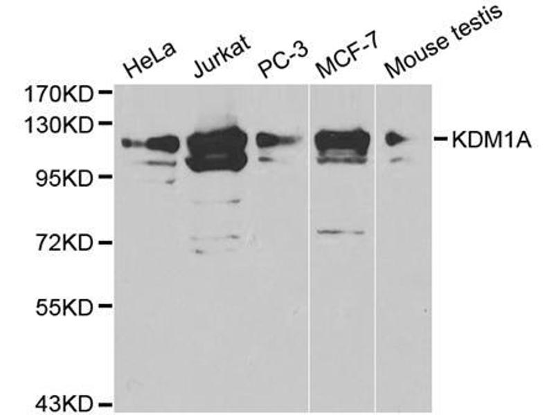Western Blotting (WB) image for anti-Lysine (K)-Specific Demethylase 1A (KDM1A) antibody (ABIN2989334)