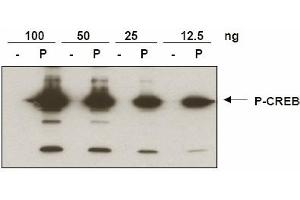 image for anti-CREB1 antibody (CAMP Responsive Element Binding Protein 1) (pSer133) (ABIN116949)