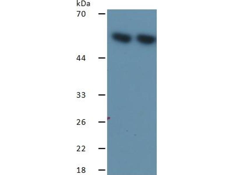 Heat Shock 60kDa Protein 1 (Chaperonin) (HSPD1) ELISA Kit (5)