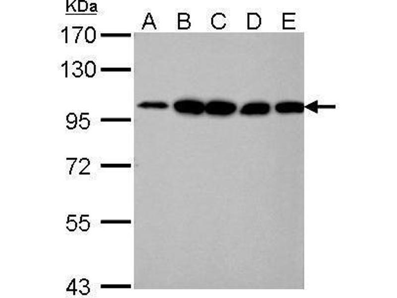 Western Blotting (WB) image for anti-Actinin, alpha 4 (ACTN4) (C-Term) antibody (ABIN2855119)