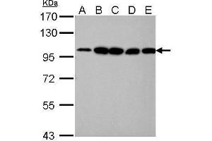 Image no. 1 for anti-Actinin, alpha 4 (ACTN4) (C-Term) antibody (ABIN2855119)