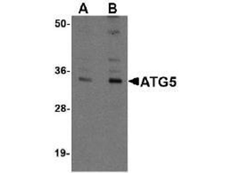 Western Blotting (WB) image for anti-ATG5 antibody (ATG5 Autophagy Related 5 Homolog (S. Cerevisiae)) (N-Term) (ABIN497967)