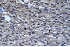 Image no. 3 for anti-Chloride Intracellular Channel 5 (CLIC5) (C-Term) antibody (ABIN2776219)