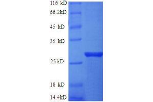 Image no. 1 for ES cell expressed Ras (ERAS) (AA 3-230), (partial) protein (His tag) (ABIN1047128)