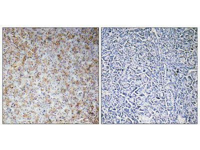 Immunohistochemistry (IHC) image for anti-WAS Protein Family, Member 2 (WASF2) (Internal Region) antibody (ABIN1852394)