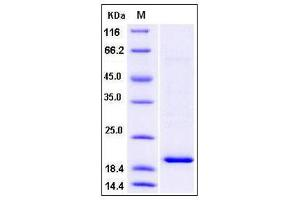 Image no. 1 for TSC22 Domain Family, Member 1 (TSC22D1) (AA 1-144) protein (His tag) (ABIN2005311)