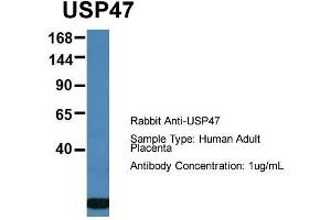 Western Blotting (WB) image for anti-Ubiquitin Specific Peptidase 47 (USP47) (Middle Region) antibody (ABIN2774253)