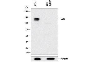 Western Blotting (WB) image for anti-AXL Receptor tyrosine Kinase (AXL) (AA 33-440) antibody (ABIN5012837)