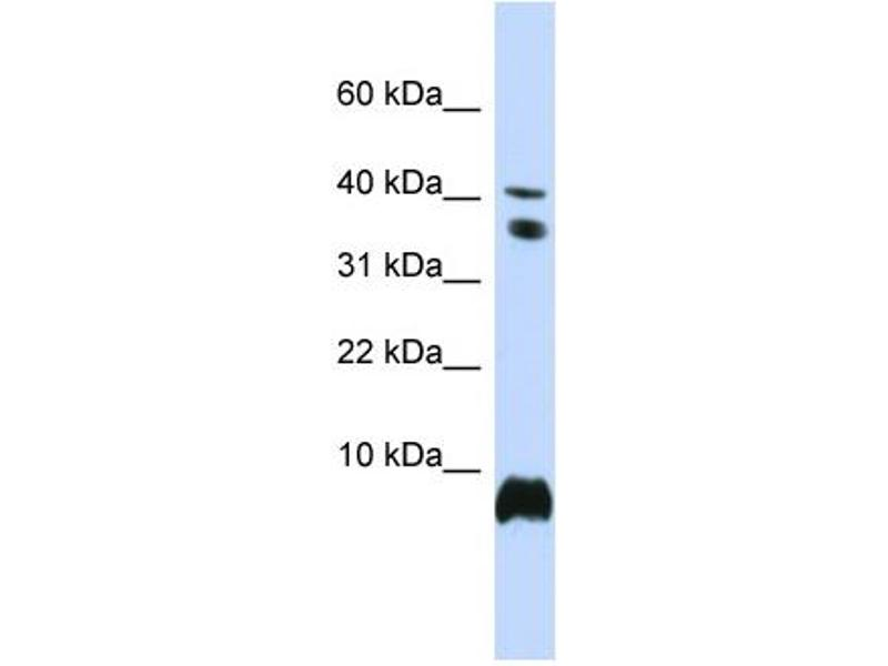 Western Blotting (WB) image for anti-High Mobility Group Nucleosome Binding Domain 1 (HMGN1) (Middle Region) antibody (ABIN2779758)